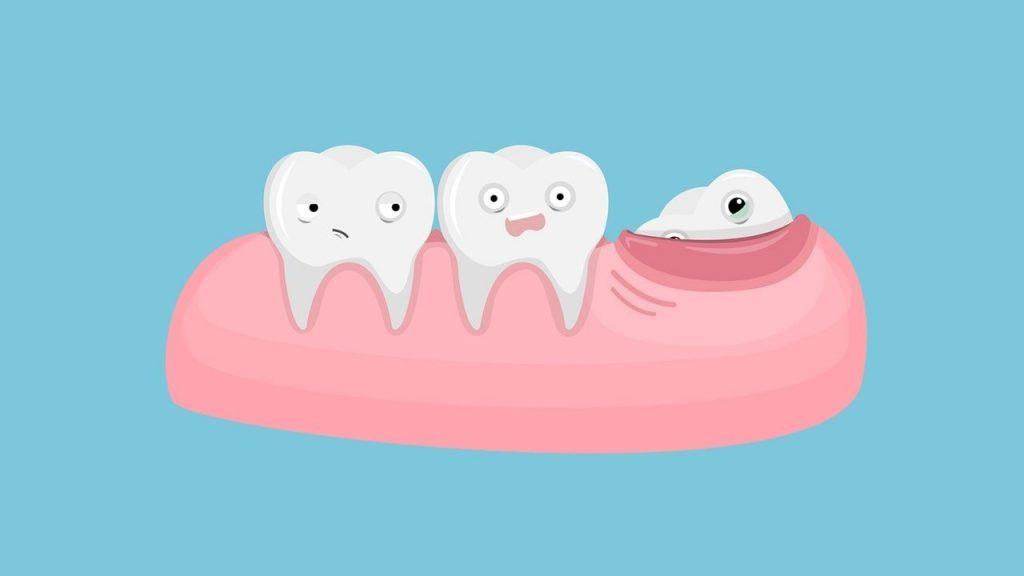 Зубы мудрости и восьмерки